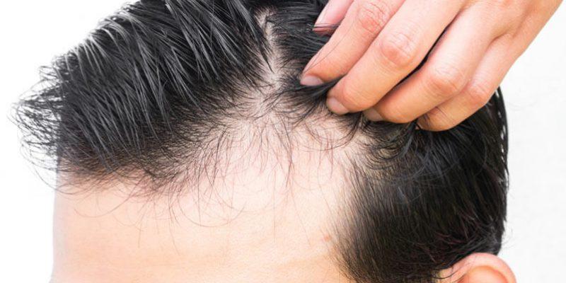 Saç dökülmesi neden olur sorusunun yanıtı ve çok daha fazlası Clinista'da.
