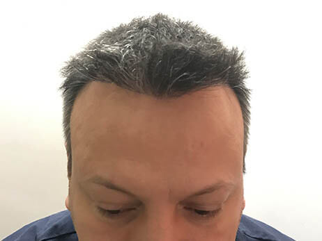 Clinista-hair-transplant-after4