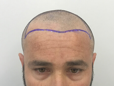 Clinista-hair-transplant-before3
